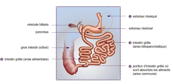 Suivi bariatrique de l'opération chirurgicale bariatrique de la Dérivation biliopancréatique