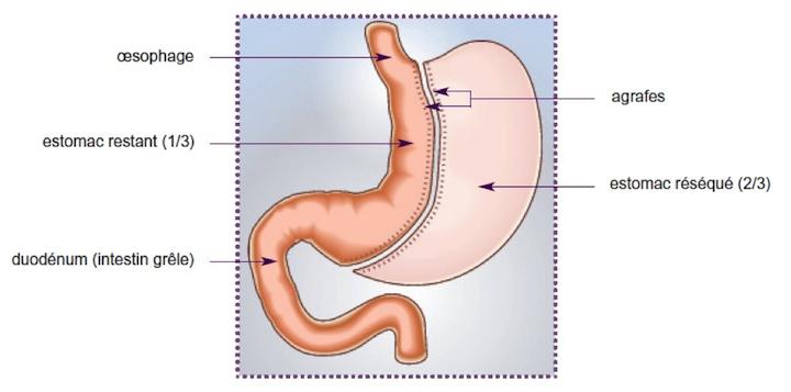 Suivi bariatrique de l'opération chirurgicale bariatrique de la Gastrectomie longitudinale ou sleeve gastrectomy