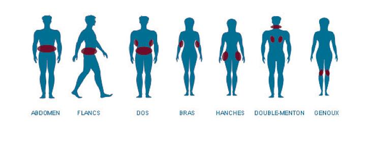 maigrir vos corps par cryolipolyse